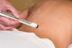 acupuncture conditions treated in Nelson NZ